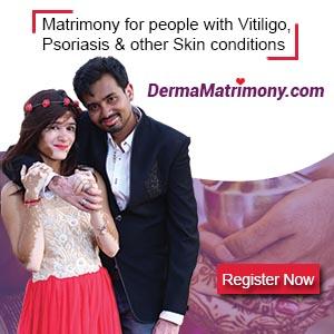Vitiligo leucoderma matrimony brides grooms