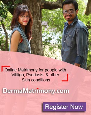 Vitiligo leucoderma white spots marriage matrimony